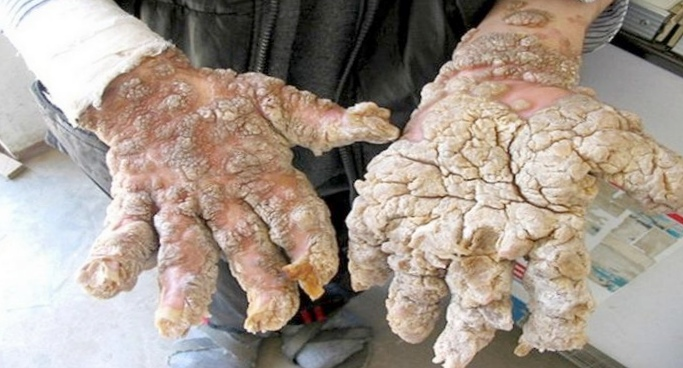 10 Самых странных болезней
