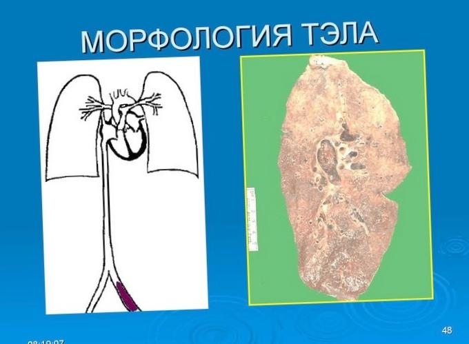 chto-zashhishhaet-ot-infarktov_1.jpg