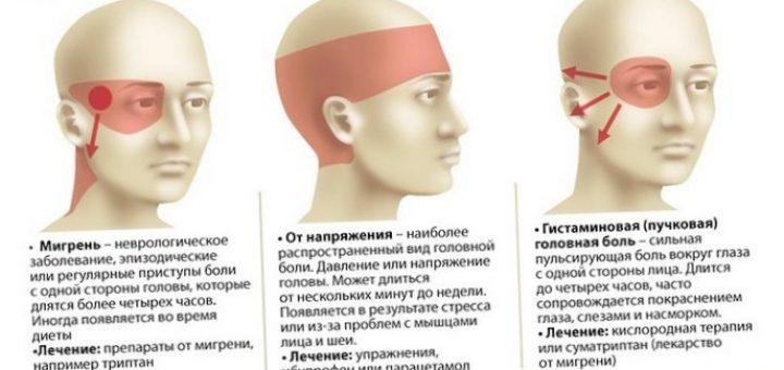 Как может проходить мигрень