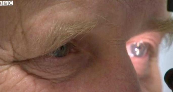 Генная терапия против слепоты