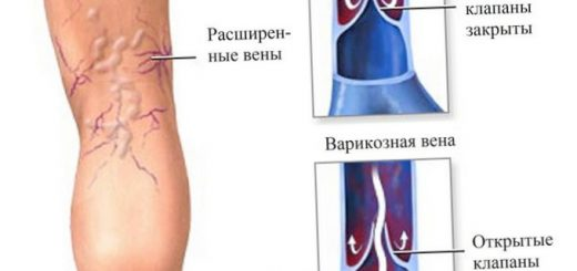 novye-binty-ispolzujut-ultrazvuk-dlja-zazhivlenija_1.jpg