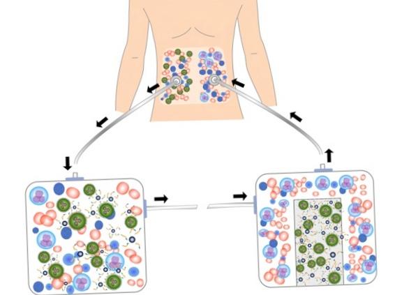 Новый метод борьбы с метастазами рака яичников
