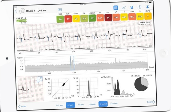 Об использовании когнитивной системы ibm watson analytics для анализа данных о работе сердца