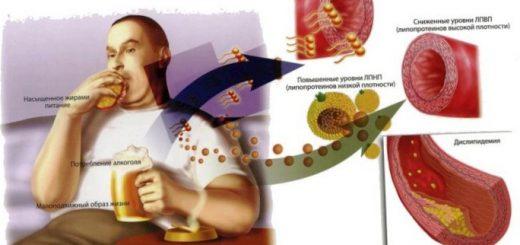 polza-vitaminov-pri-povyshennom-urovne-holesterina_1.jpg