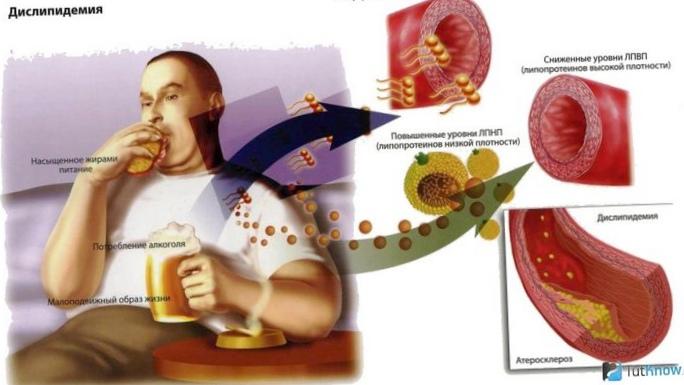 Польза витаминов при повышенном уровне холестерина