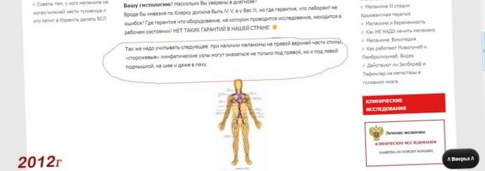 Создан новый препарат для лечения меланомы