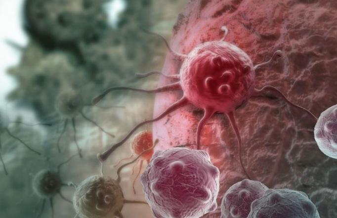 Ученые раскрыли механизм образования метастазов рака