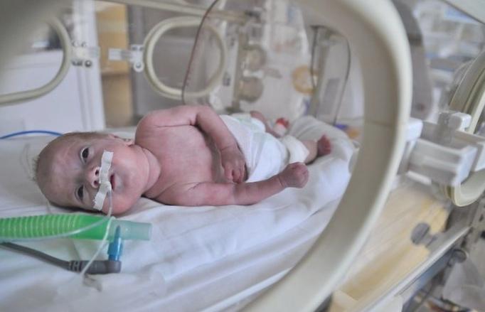 Уход за недоношенным маленьким ребенком