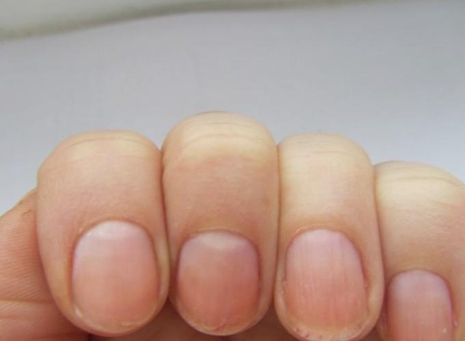 Взгляните наруки! 7 важных вещей, которые ногти говорят овашем здоровье
